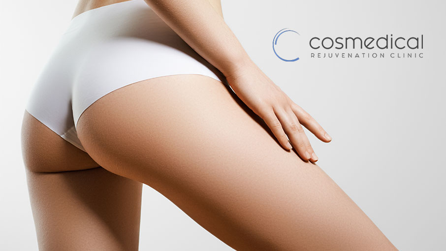 How to Minimize Risks of Brazilian Butt Lifts?