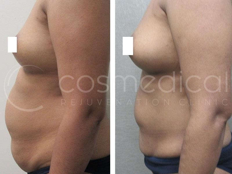 fat transfer breast augmentation toronto before and after