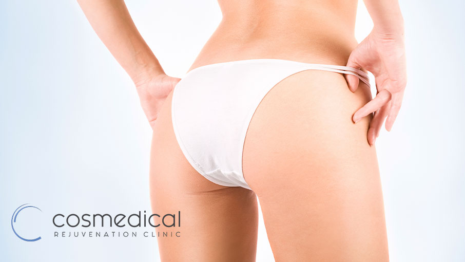 What Exactly Does A Brazilian Butt Lift Do?
