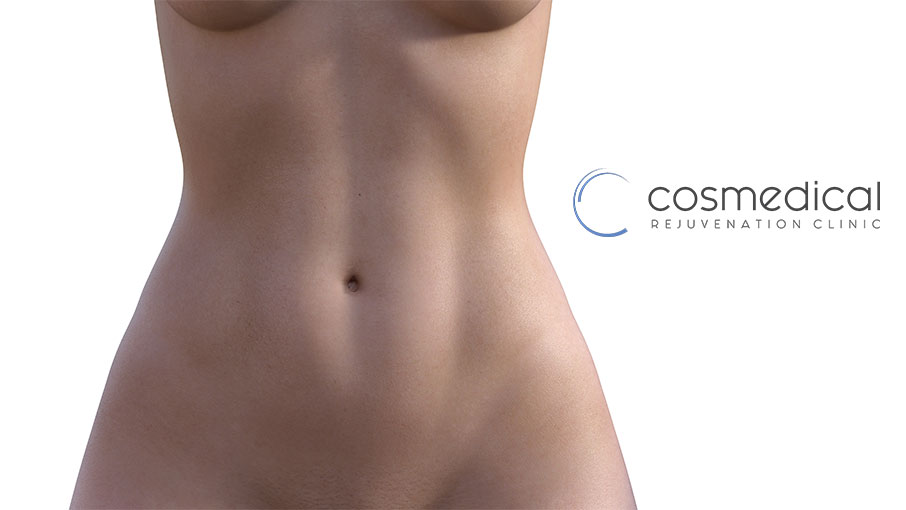 Cosmetic Surgical Procedures After Massive Weight Loss